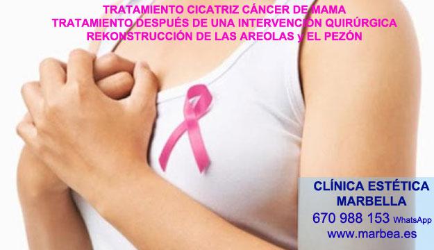 MICROPIGMENTACIÓN DE LA AREOLA clínica estética micropigmentación ofrenda tratamiento cicatrices luego de reduccion de senos