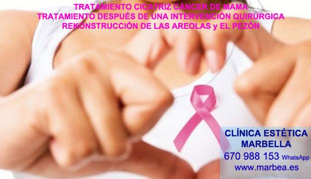 CORRECCIÓN CICATRICES EN EL PECHO Tratamiento cicatrices después de reduccion senos Marbella