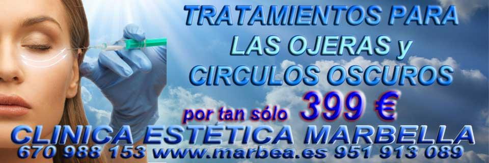 rejuvenecimiento facial Estepona camuflaje para rejuvenecer parpados sin cirugia Marbella y Estepona