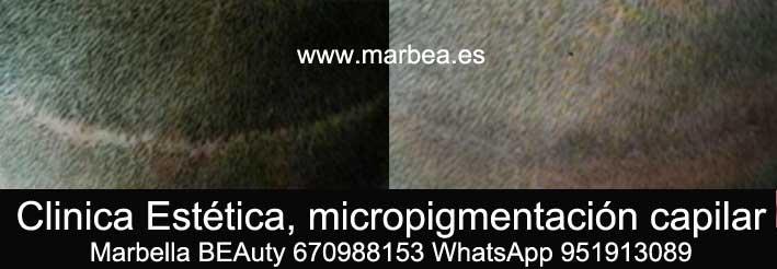 DISIMULAR CICATRIZ CABEZA CLINICA ESTÉTICA micropigmentación capilar en Marbella y maquillaje permanente en marbella