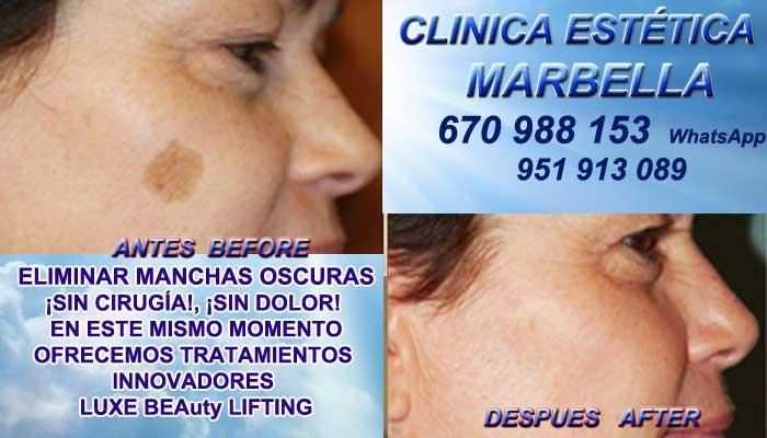 ELIMINAR MANCHAS OSCURAS Ronda Manchas pigmentarias, Tratamiento de manchas y lesiones pigmentadas en Tratamiento para manchas facialesen. Eliminar lesiones pigmentadas en, Quitar lesiones pigmentadas en Marbella or Ronda