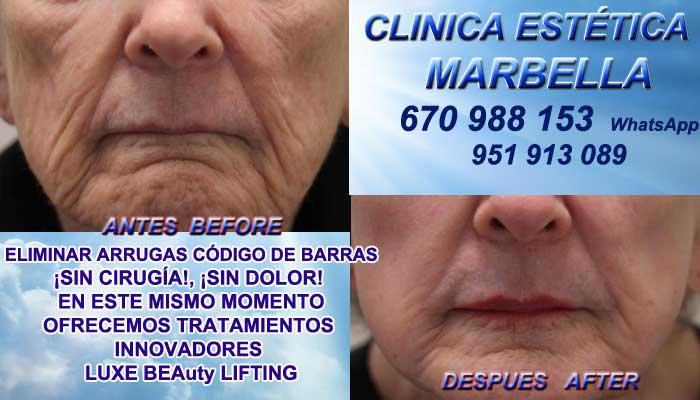 código de barras Huelva:En la CLINICA ESTÉTICA MARBELLA te ofrecemos la alta calidad de, nuestro trabajo en Marbella o Coín