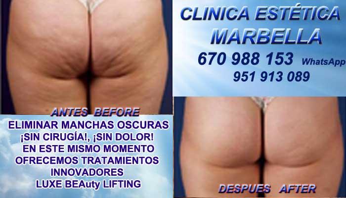 Tratamiento Para Celulitis Murcia :En la CLINICA ESTÉTICA MARBELLA te proponemos la mayor calidad de, servicios en Marbella o Murcia