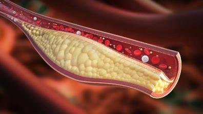 Come ridurre il colesterolo