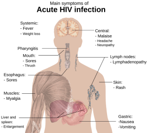 Symptoms of Hepatitis