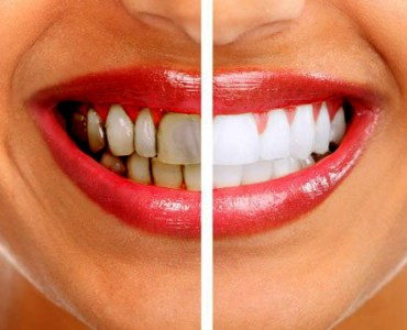 Ways of Avoiding Teeth Stains