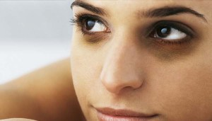 Causes for Dark Circles