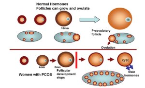 signs and symptoms of PCOS