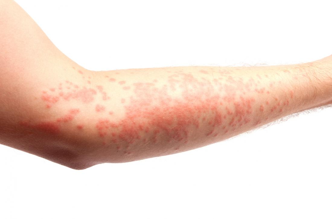 Home Remedies for Urticaria