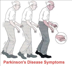 Symptoms of Parkinson