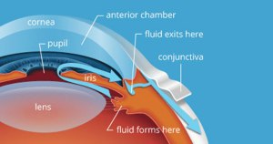 Glaucoma-A silent Thief of Sight