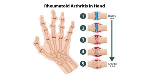 Causes of Rheumatoid Nodules