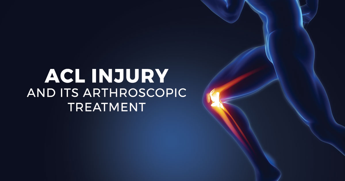 ACL Injury and its Arthroscopic Treatment-No Stitches Involved