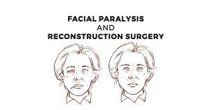 Facial Reconstructive Surgery – A Ray of Light in Dark