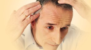 Hair Transplantation in Lahore