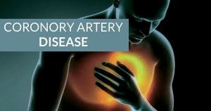 3 Treatment Approaches for Coronary Artery Disease