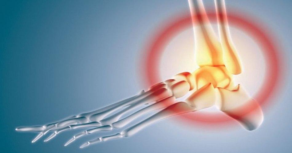 ankle-sprain