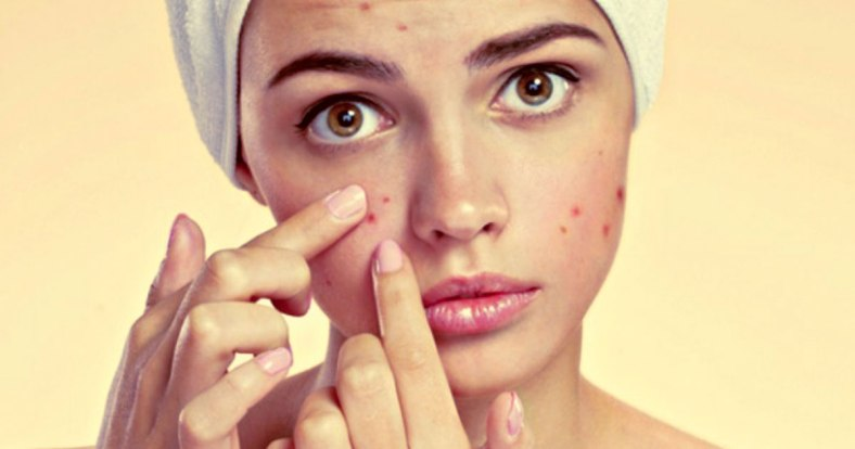 acne break out
