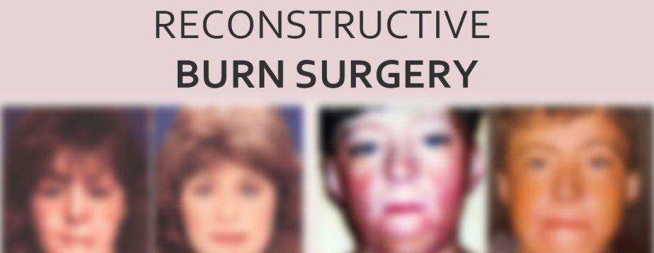 Treatment for Burn Patients