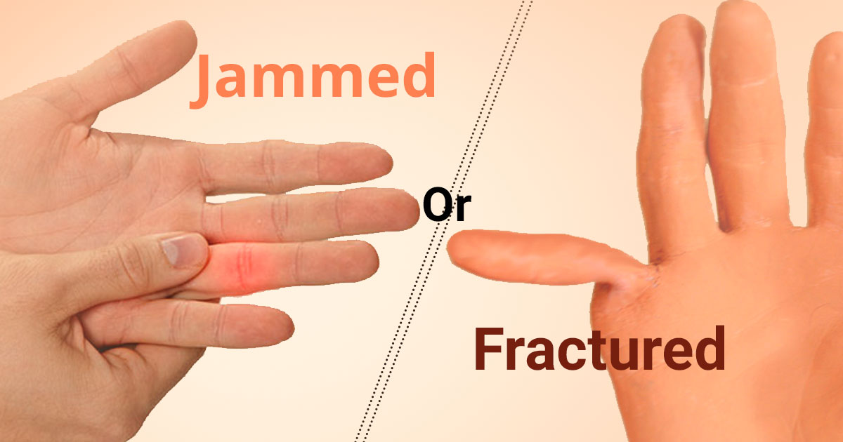 Jammed or Fractured Finger