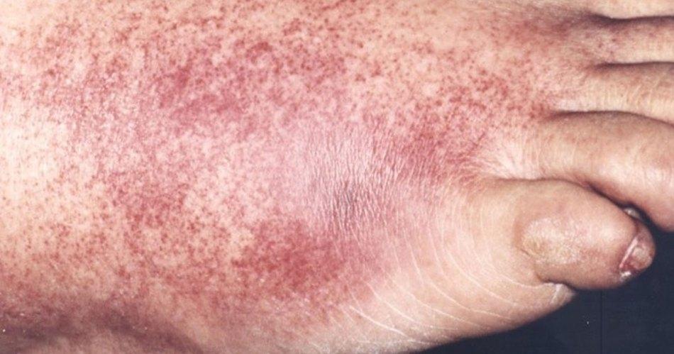 gangrene symptoms