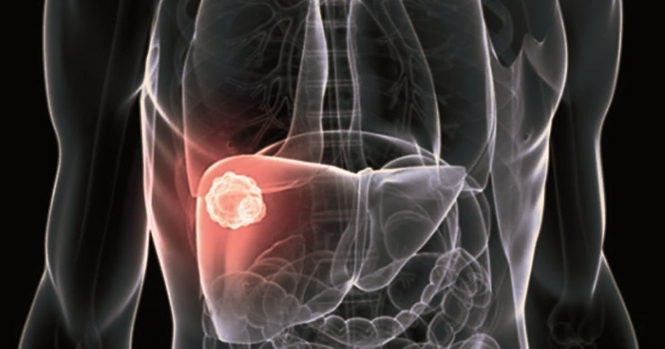 signs of liver inflammation