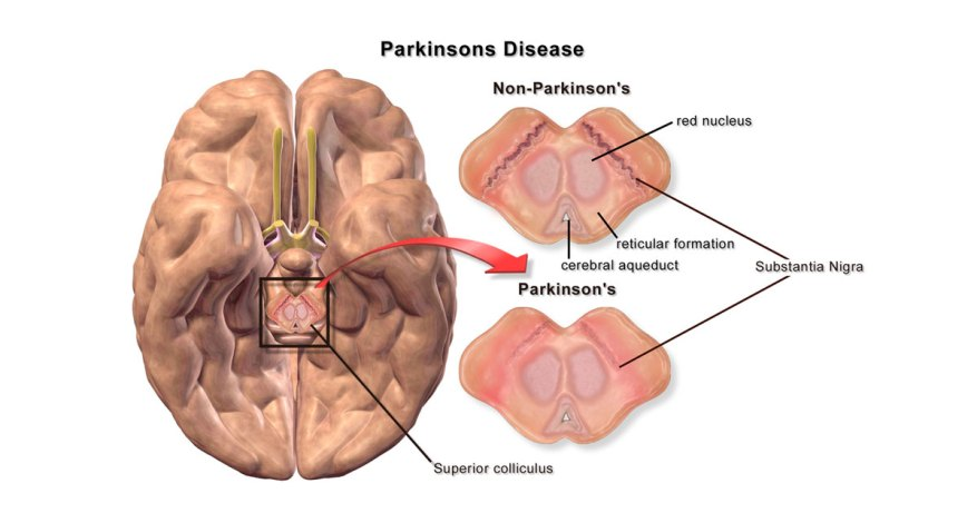 Brain changes in Parkinson's disease