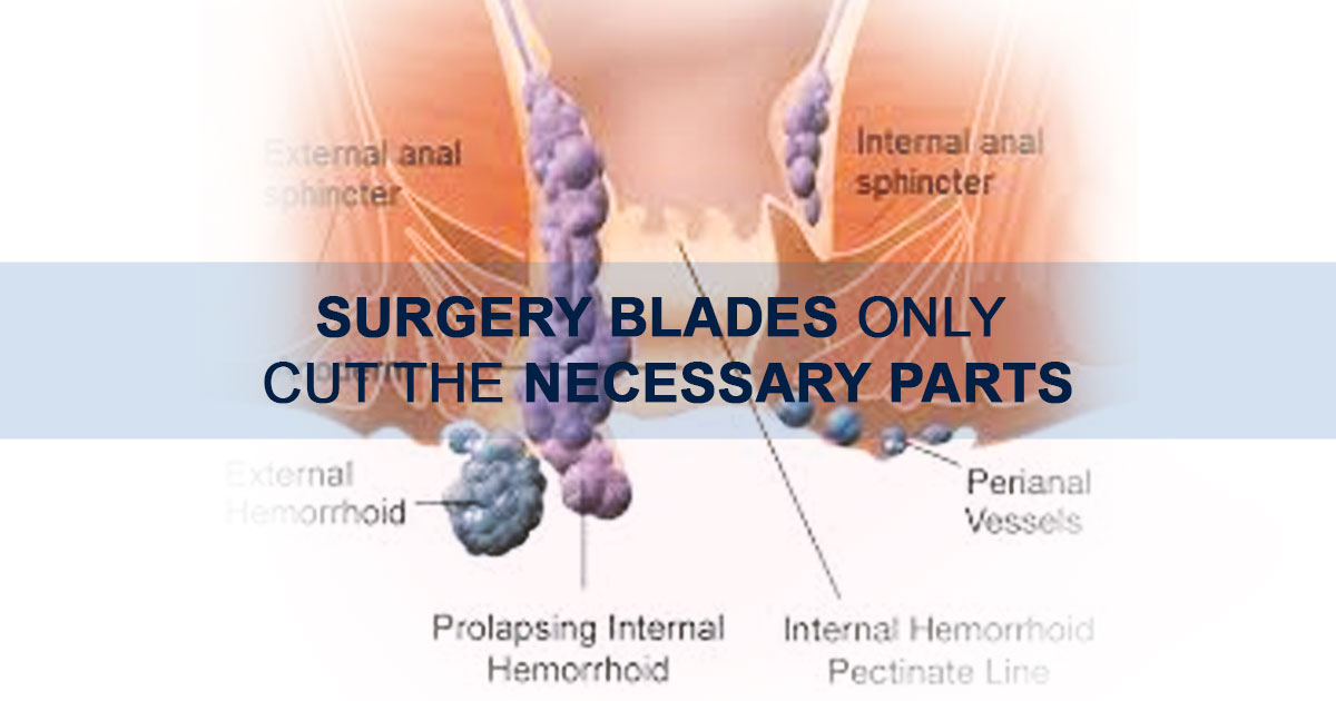 5 Surgical Options for Piles Treatment
