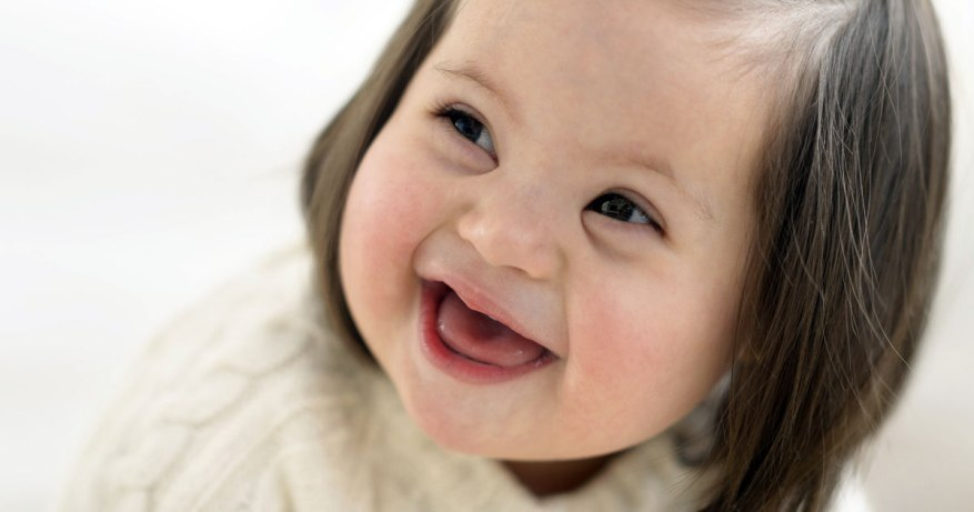 physical abnormaliites in down's syndrome