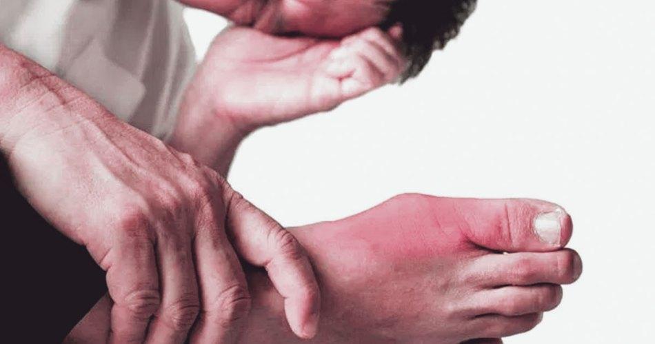 skin symptoms of uric acid