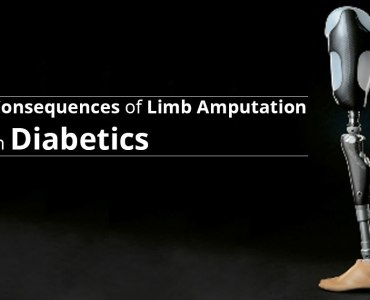 3 Important Questions Regarding Limb Amputation in Diabetics
