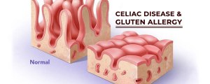 Facts about Celiac Disease and Gluten Intolerance