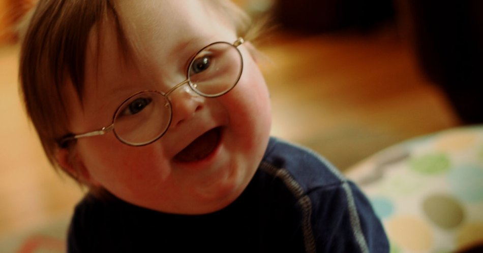 down's syndrome causes