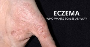 6 Most Effective Ways to Soothe Eczema