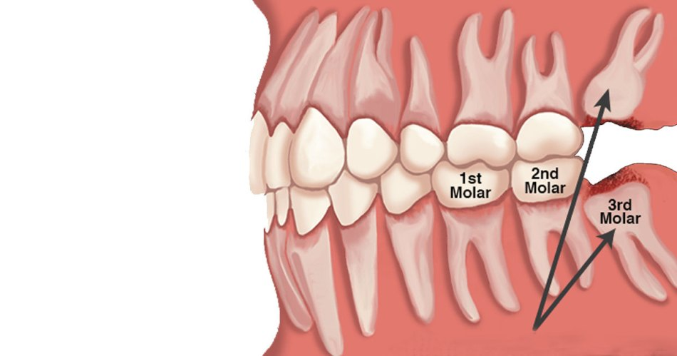 extraction of wisdom teeth