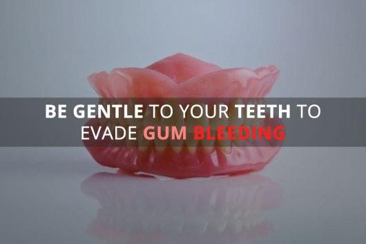 Top 5 Measures to Get Rid of Bleeding Gums