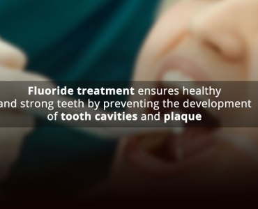 5 Benefits of Fluoride Treatment for Dental Health