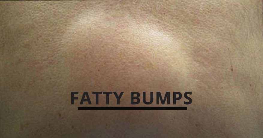 fatty bumps on skin