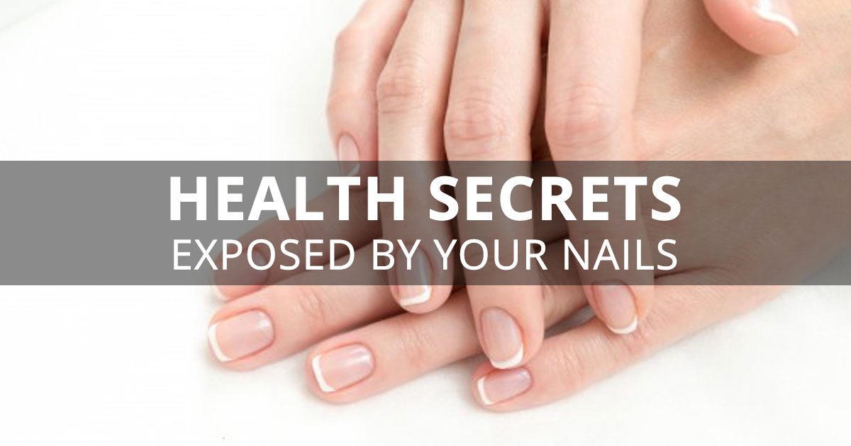 10 Health Secrets Exposed By Your Nails