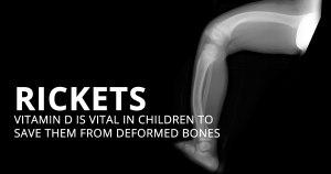 Rickets-Deficiency to Deformity