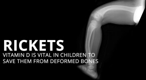 Rickets-Deficiency to Deformity