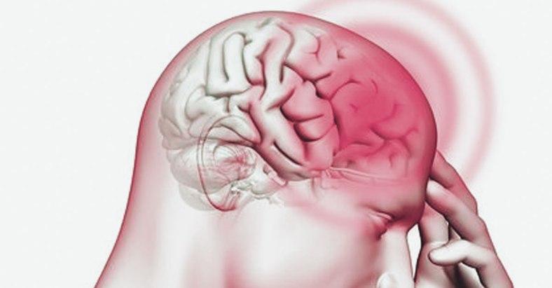 brain related stress