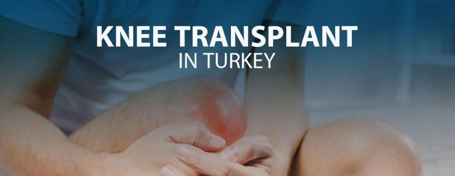 Knee Transplant