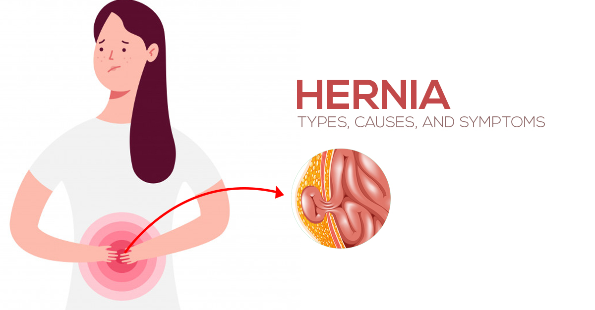 Types, Causes, and Symptoms of Hernia