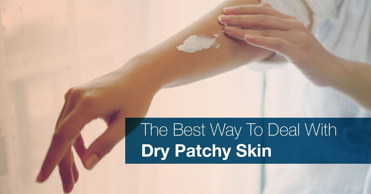 Patchy Dry Skin