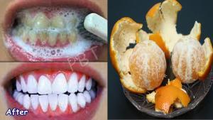 دانتوں