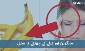 مائگرین کا علاج سر پر کیلے کا چھلکا باندھ کر یا دانتوں میں پنسل دبا کر کچھ حیران کن طریقے