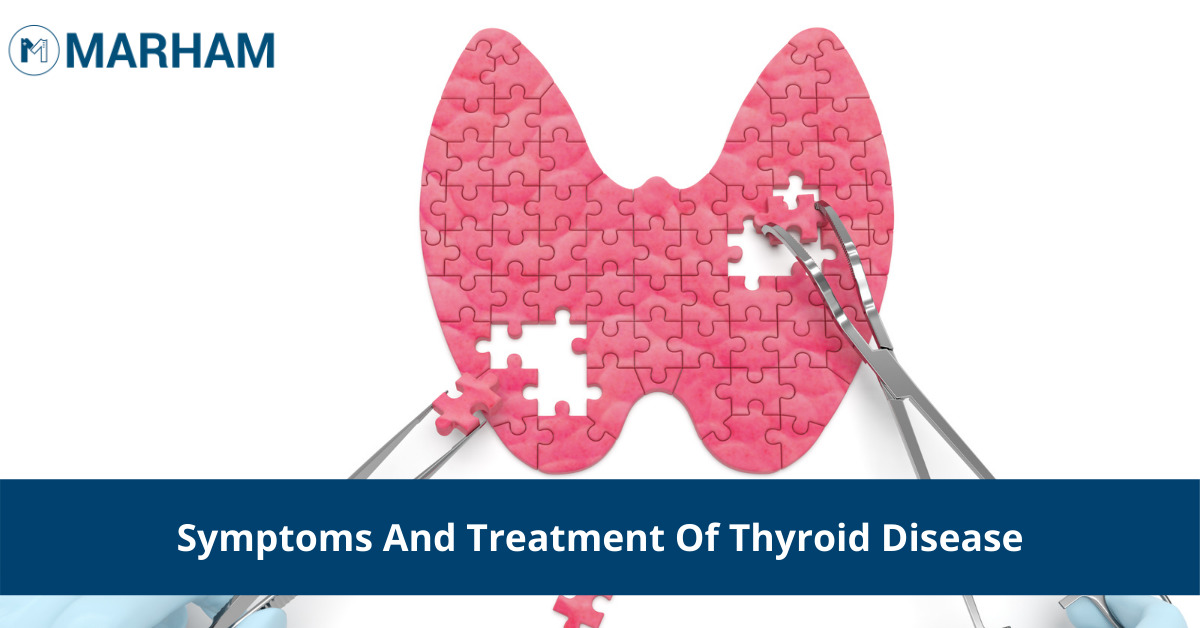 treatment of thyroid disease