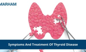 Symptoms And Treatment Of Thyroid Diseases