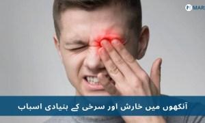 خارش : آنکھوں میں ہونے والی خارش اور سرخی کے5 اسباب و آسان علاج